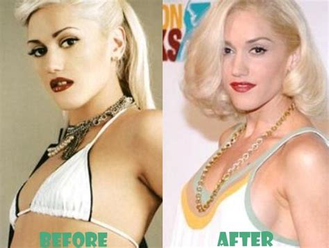 gwen stefani boob job surgery celebrity bra size body