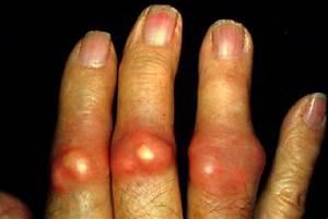 Бородавки на пальцах рук у ребенка лечение