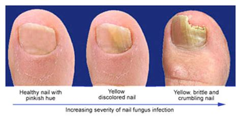 zetaclear review   toenail fungal therapy