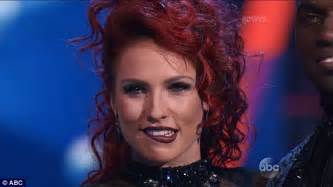 Dancing With The Stars' Sharna Burgess Suffers Wardrobe