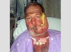 唇部疱疹竟为恶性皮肤癌 澳男子被迫切除嘴唇和下巴 _健康_环球网