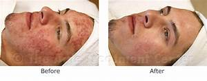 Acne Pictures, Acne Photos | Pictures of Acne, Photos of ...
