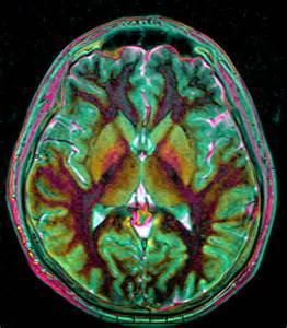 Brain MRI with Contrast
