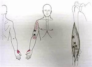 Brachialis Trigger Point Diagram