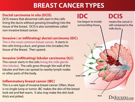 12 Natural Strategies To Prevent Breast Cancer