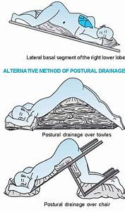 How Postural Drainage Can Help Clear Fluid In The Lungs