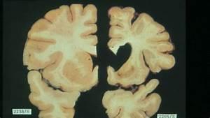 Kiwi scientists make Huntington's disease breakthrough