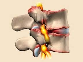 Какое лечение при артрозе локтевого сустава