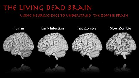 brain zombie inside zombies dead stages walking brains purposes slow atrophy neuroscience paranormal association national fast cognitive axon