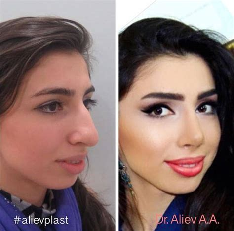 Big Nose Plastic Surgery Before And After » Rhinoplasty