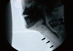 Initial Video Fluoroscopic Swallowing Study Shows Aspir
