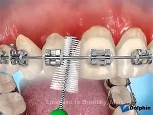 Dents Qui Se Déchaussent Photos : comment se brosser les dents avec un appareil dentaire youtube ~ Medecine-chirurgie-esthetiques.com Avis de Voitures