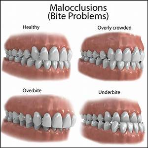 Mild And Severe Malocclusion Causes  U0026 Treatment Options
