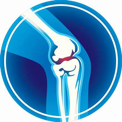 Knee Joint Pain Arthritis Relief Replacement Remedies