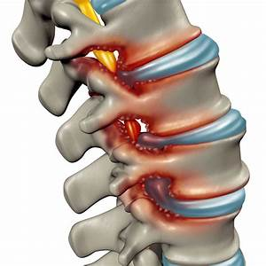 Spinal Stenosis Treatment
