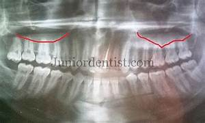 Can tooth infection cause sinus infection for Floor of the maxillary sinus
