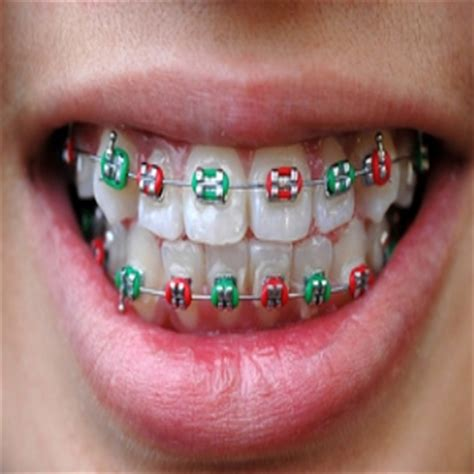braces colors that make teeth look whiter make your teeth look whiter the dental check