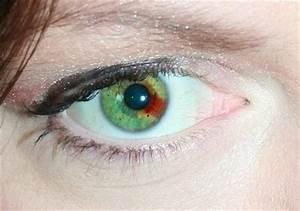 45 best Heterochromia images on Pinterest | Pretty eyes ...