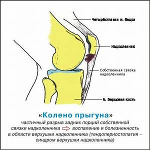 Препарат от боли в суставах с гиалуроновой кислотой