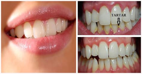 remove plaque  tartar  teeth  home fast