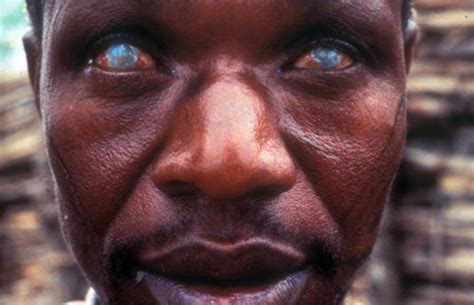 river blindness worms genome reveals unique fatal flaws