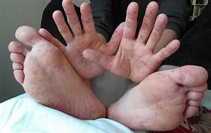 Rash on hand and feet of a 36-year old man