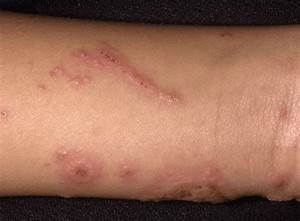 Contact Dermatitis - Skin Disorders - Merck Manuals Consumer Version Dermatitis