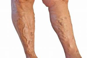 Varicose Veins - Pictures, Causes, Symptoms, Treatment ...
