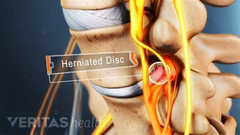 Lumbar Herniated Disc Symptoms, Treatments & Surgery. Differences Between Roth And Traditional Ira. Metro Windows And Doors Fork Truck Extensions. How To Become An Occupational Therapy Assistant. Hotels Near Tokyo Narita Airport. Natural Remedies For Dry Damaged Hair. Carr Insurance Picayune Ms Petsmart Arden Nc. Maverick Helicopters Crash Career Step Login. Professional Website Design Service
