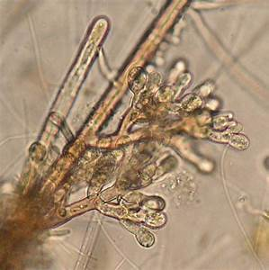 Brown Algae Microscope Slide | www.pixshark.com - Images ...