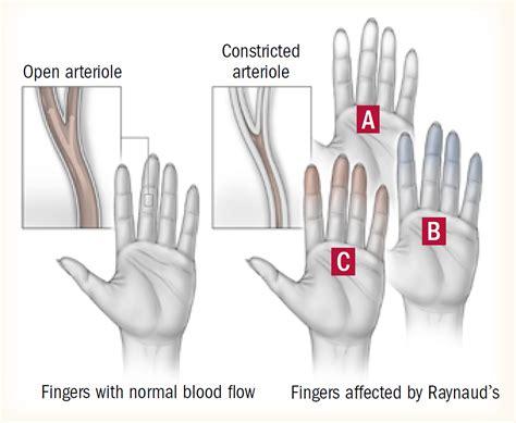 raynauds disease harvard health