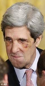 John Kerry black eyes: Senator shows off injuries after ...