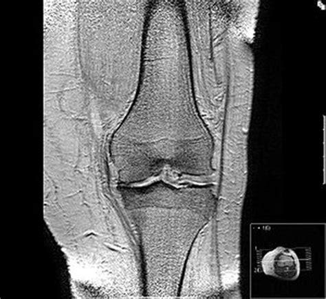 Arthrose -diagnose per, röntgenbild
