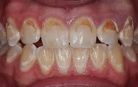 chennaibraces tips  prevent tooth decay  caries