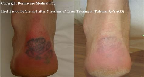 laser tattoo removal  york