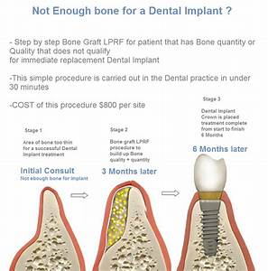 Step By Step Guide To Bone Graft Costs And Stages