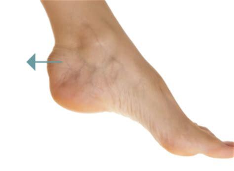 Haglund's Deformity Definition, Symptoms, Causes