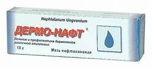 Пятна на коже псориаз и лечение