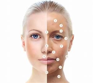 skin peels for acne