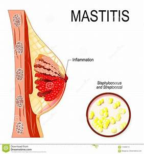 Mastitis  Inflammation Of The Breast Abscess Formation  Stock Vector