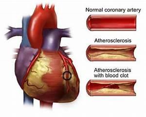 Heart Disease | EatWellandBeyond.com