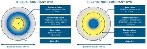 bifocal contact lenses compared to monovisionsan antonio s