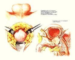 obat herbal prostat bengkak obat herbal kanker payudara