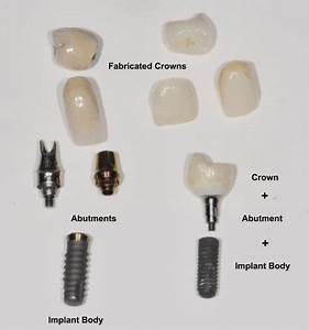 Dental Implant Faqs Chevy Chase Md  Obeid Dental