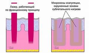 Папиллома в шейке матки симптомы и лечение