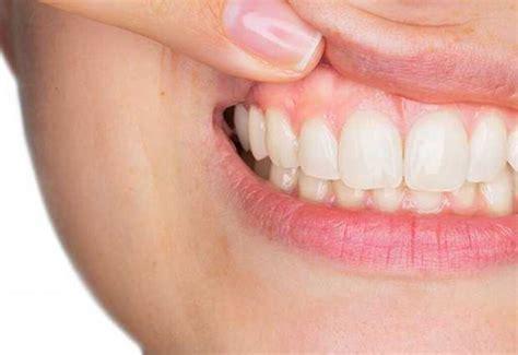treatment  gingivitis bradenton fl