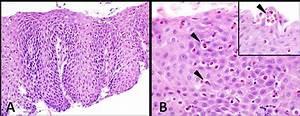 Eosinophilic oesophagitis: clinical presentation and ...