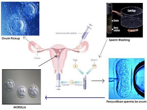 Gambar Kandungan Wanita Proses Bayi Tabung