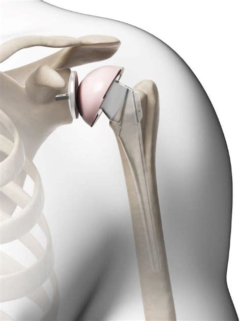 zimmer biomet class  recall  shoulder replacement