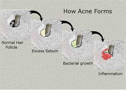 Acne Genetic Environmental Formation Sebum Environment Inflammation